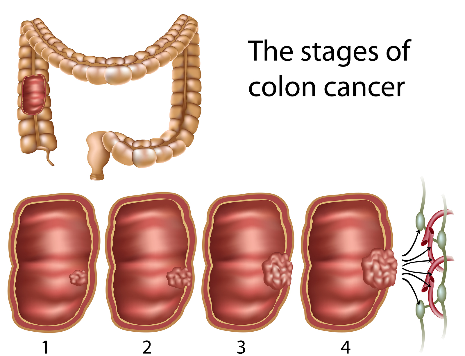 ... Leading Cause of Cancer Deaths Can Be Prevented- Colorectal Cancer