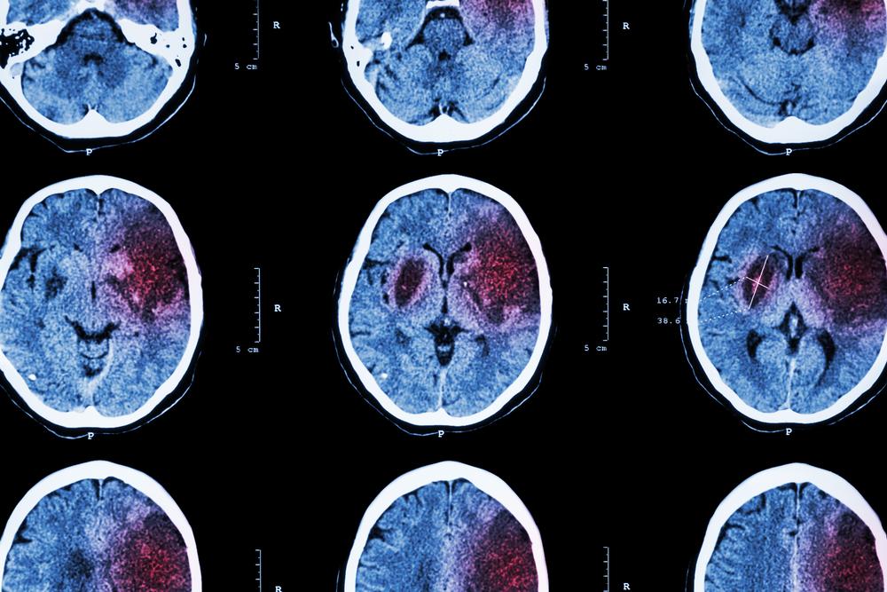 Cómo prevenir un accidente cerebrovascular: 5 consejos prácticos a seguir
