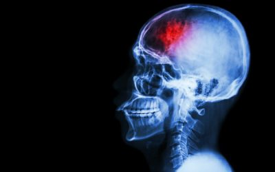 How to Prevent a Stroke: 5 Practical Tips to Follow
